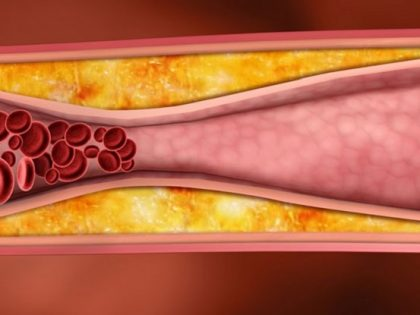 Двете лица на вашия холестерол – знаете ли всичко за него