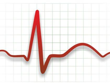 Честота и нарушения на сърдечния ритъм [част 1]